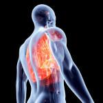 Top 10 Alimentos Anti-inflamatórios.
